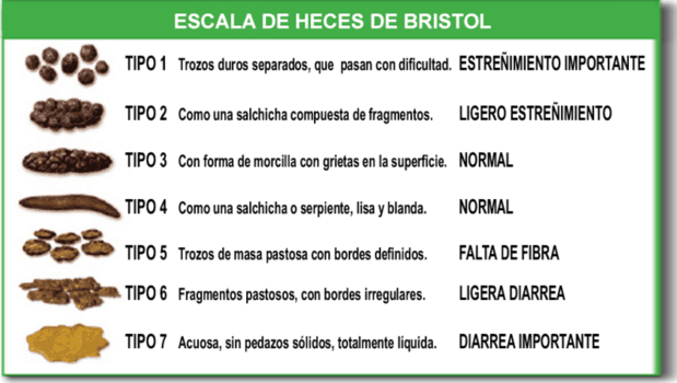Como saber si tengo colon irritable - escala bristol