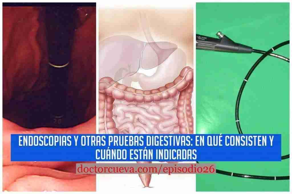 Endoscopias y otras Pruebas Digestivas: En qué consisten y cuándo están indicadas | Episodio 26