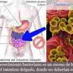 sobrecrecimiento bacteriano top